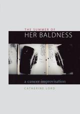 Summer of Her Baldness